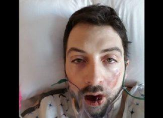 Il essaie d'arrêter de fumer et sa cigarette électronique lui explose au visage ! │ MiniBuzz