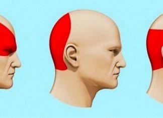 Comment se débarrasser d'un mal de tête en 5 minutes! │ MiniBuzz