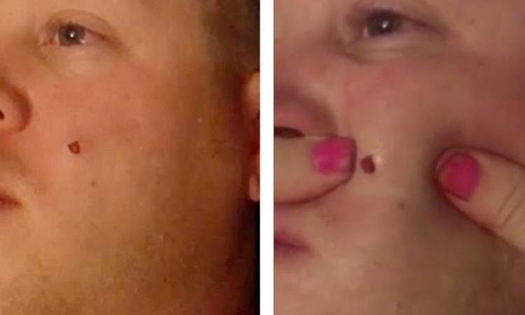 Il a un vieux bouton de 4 ans au visage, sa femme le perce enfin, mais ce qui sort de là est ignoble !